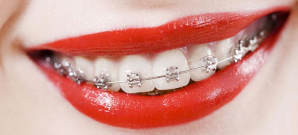 Aparatele ortodontice mobile – ce sunt, când le folosim?