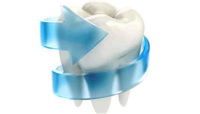 Fluorizarea dintilor