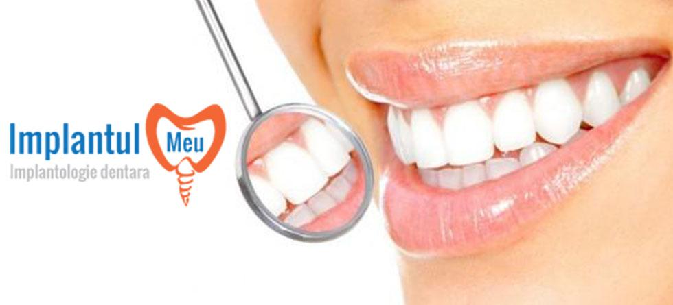 Stiati ca lipsa dintilor provoaca imbatranire prematura?