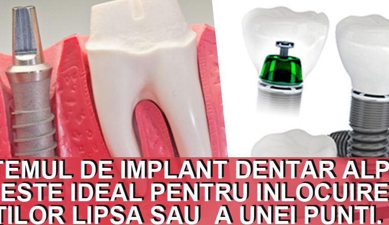 Implanturi dentare Alpha Bio