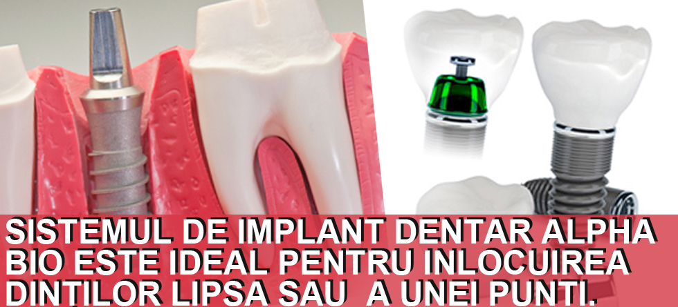Implanturi dentare Alpha Bio