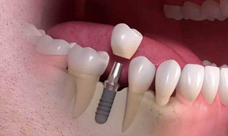 Principalele etape privind montarea unui implant dentar si metoda (procedura) de inserare :